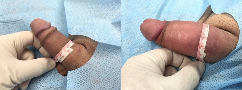 PMMA Patient 11-20-2015: PMMA Non-Surgical Girth Enhancement Before and After