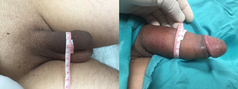 PMMA Patient 10-31-2015: PMMA Non-Surgical Girth Enhancement Before and After