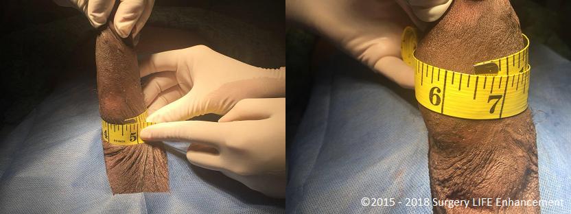 PHALLOSAN  Penis Extender and Enlargement Penis Sleeve
